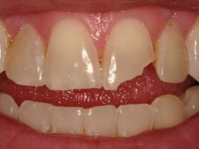 Счупен зъб