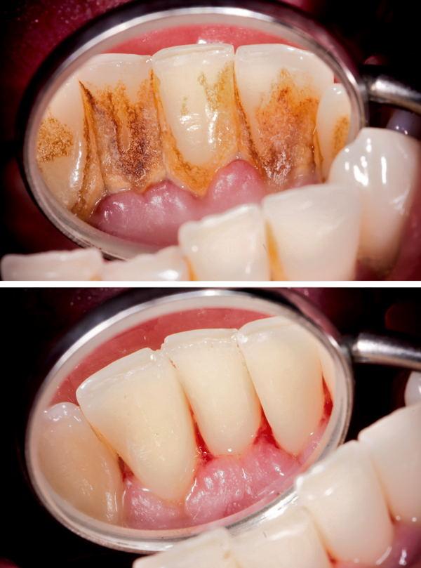 Преди и след почистване на зъбен камък