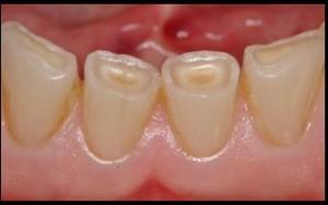 Изтрити зъби