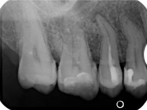 Зъб болка. Незапълнен коренов кана с възпаление около корена
