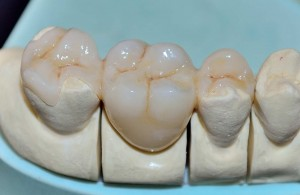 Керамичен инлей. Мост захванат за съседните зъби чрез два инлея