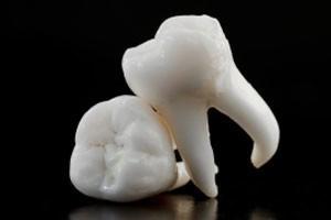 Вадене зъб екстракция
