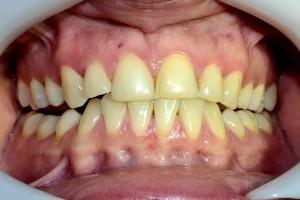 Избелване на зъбите в домашни условия или в кабинета