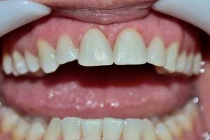 Естетична стоматология. Домашно избелване