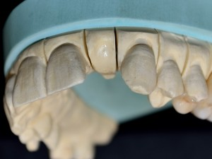 Липсващ зъб