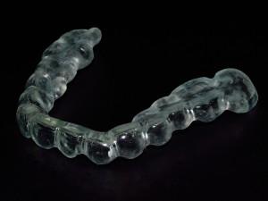 Шина за предпазване на зъбите