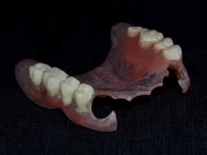 Зъбни протези. Протеза от еластична пластмаса